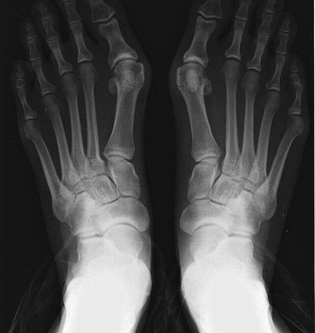 How to deal with Hallux Valgus (Bunions)